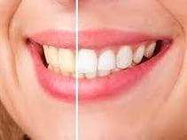 whitener teeth